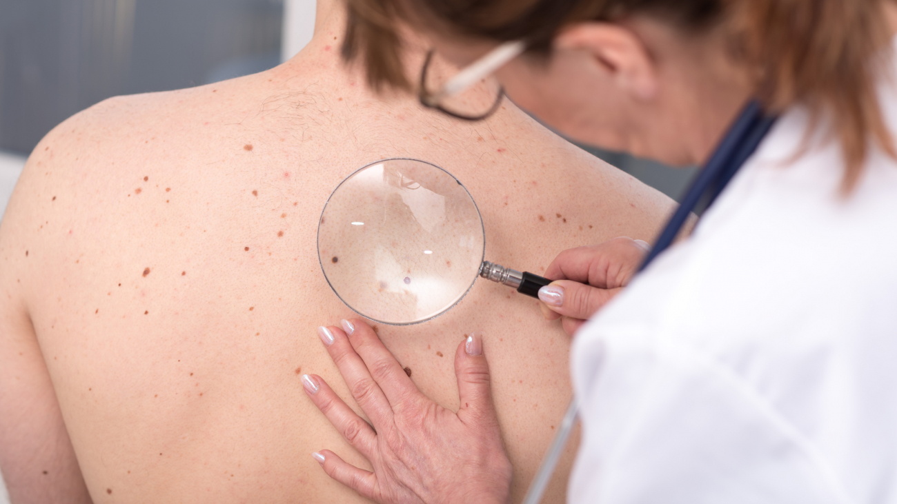 Dermatologist examining the skin on the back of a patient